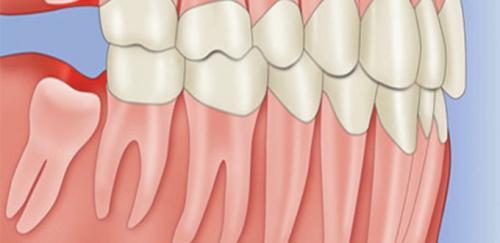 Mọc răng khôn trong bao lâu