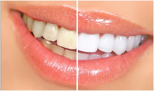 cách sử dụng miếng dán trắng răng Crest
