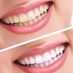 Răng bị ố vàng làm sao để trắng sáng