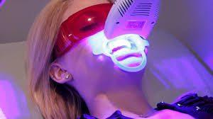 phương pháp tẩy trắng răng hiệu quả nhất