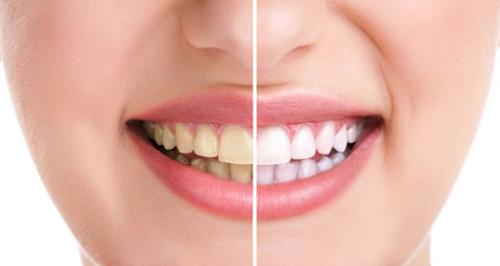 nên hay không nên tẩy trắng răng