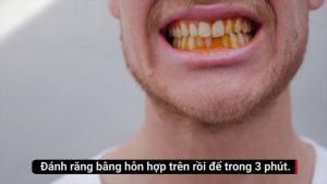 răng trắng bóng au 5 phút