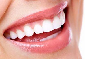 Cách tẩy trắng răng nhanh nhất
