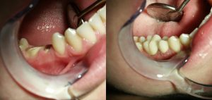 bọc răng hàm
