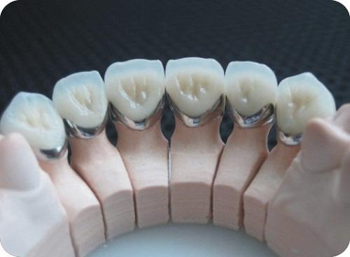 Bọc răng sứ loại nào tốt