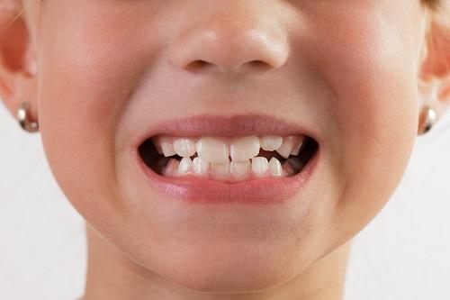 cách chữa bệnh nghiến răng ở trẻ em
