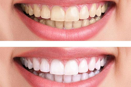 làm gì để răng trắng hơn