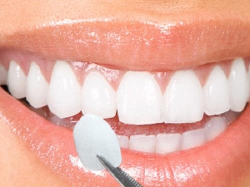 Lưu ý sau khi bọc răng sứ