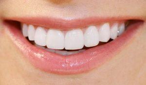 Răng sứ dùng được bao lâu