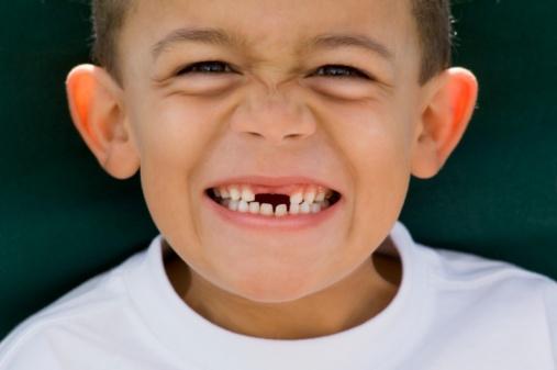 Nhổ răng sữa khi nào
