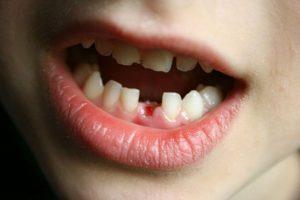 Răng sữa có chân không