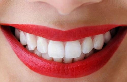 răng trắng