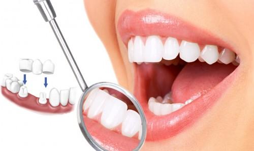 bọc răng là gì