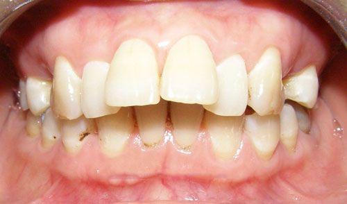 bọc răng sứ có hết hô không