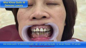 Bọc răng là gì?