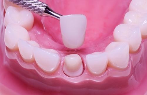 có nên bọc mão răng sứ không?