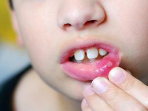 Trẻ bị lở miệng thì phải làm sao