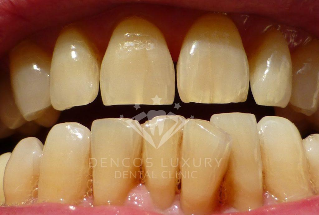 cách làm trắng răng với than hoạt tính
