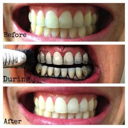 cách làm trắng răng với than hoạt tính 3