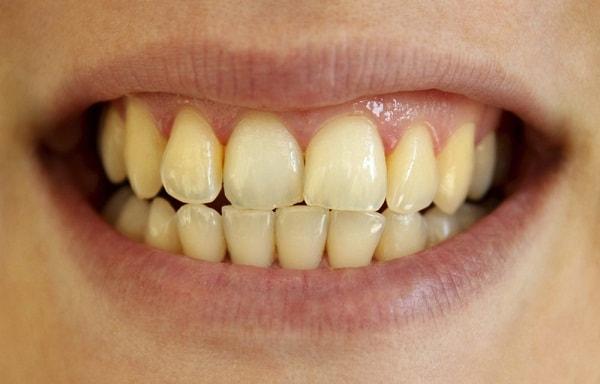 Ảnh hưởng của vết dính trên răng