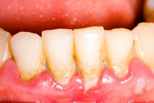 Bệnh lý về răng