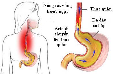 Nguyên nhân hôi miệng do nóng dạ dày