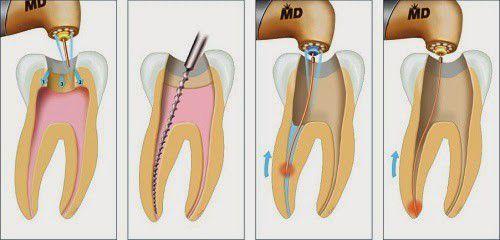 Răng đã được nội nha có thật sự bền vững?