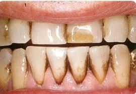 Vết dính trên răng