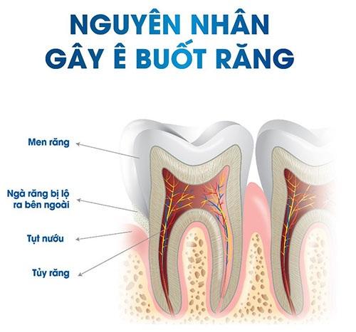 Nguyên nhân của ê buốt chân răng