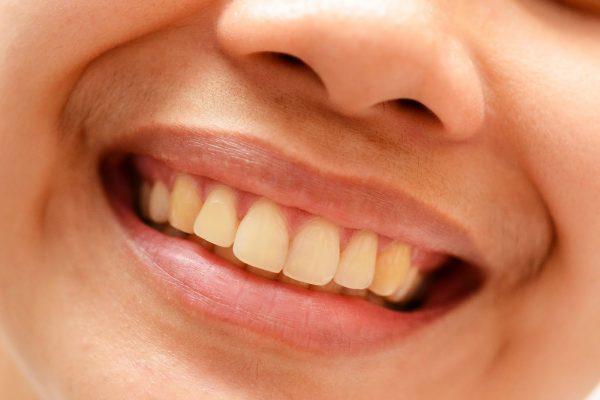 làm trắng răng ngay lập tức