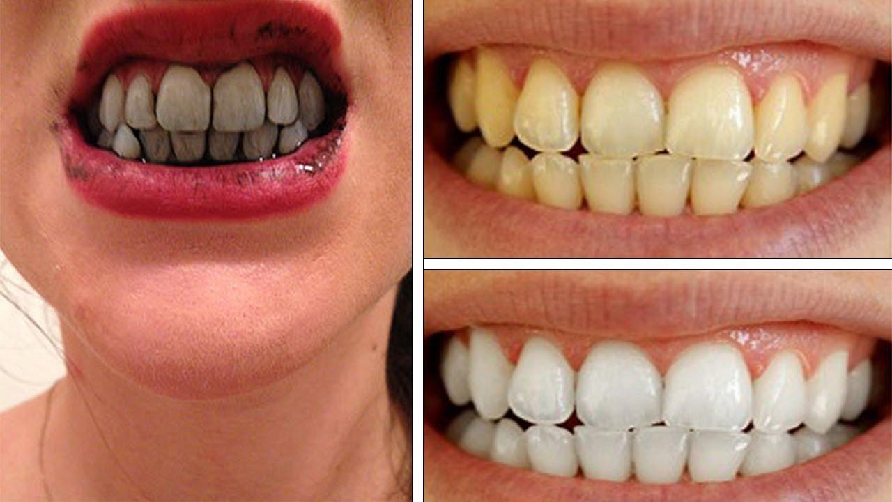 Có nên làm trắng răng bằng than hoạt tính không