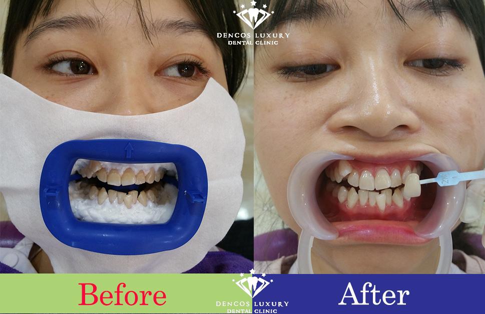 làm trắng răng nhiễm tetracycline