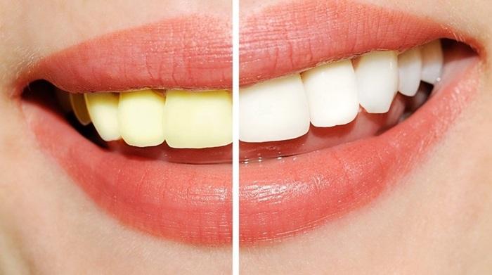 Làm trắng răng giá cả bao nhiêu