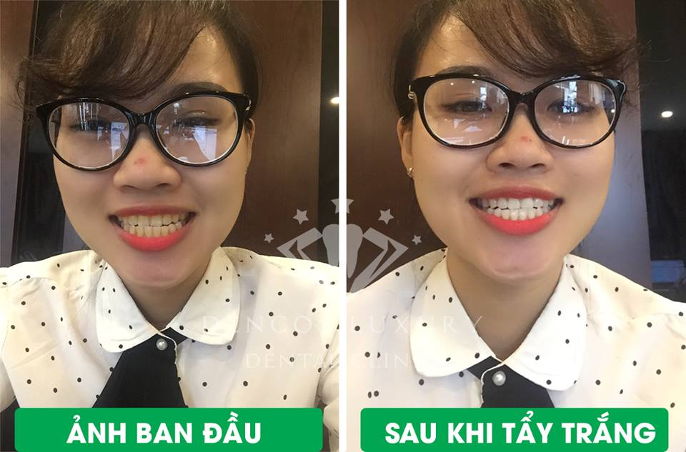 Tẩy trắng răng xong nên làm gì