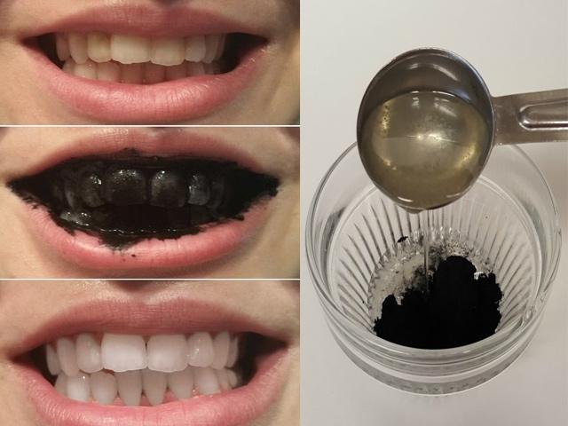 Than có làm trắng răng không