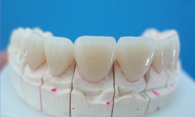 Bọc răng sứ trong thời gian bao lâu?