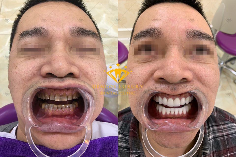 làm trắng răng khi hút thuốc