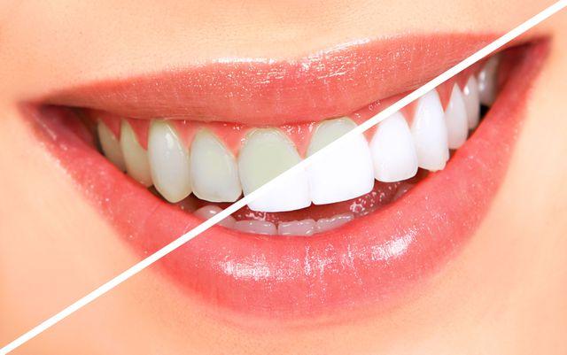 làm trắng răng bằng ôxy già