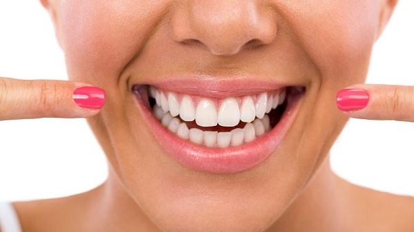 lưu ý khi làm trắng răng