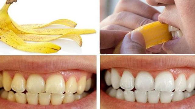 làm trắng răng bị ố vàng bằng vỏ chuối