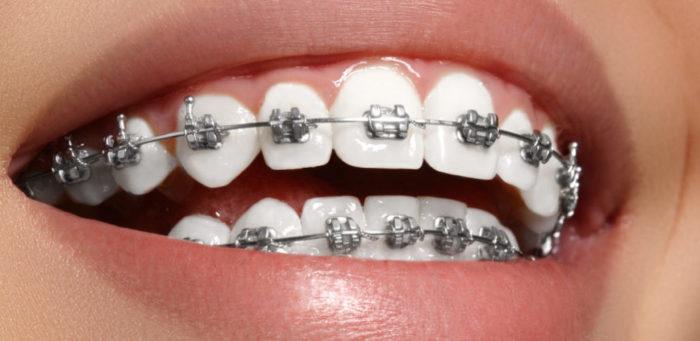 Những lưu ý khi niềng răng mắc cài