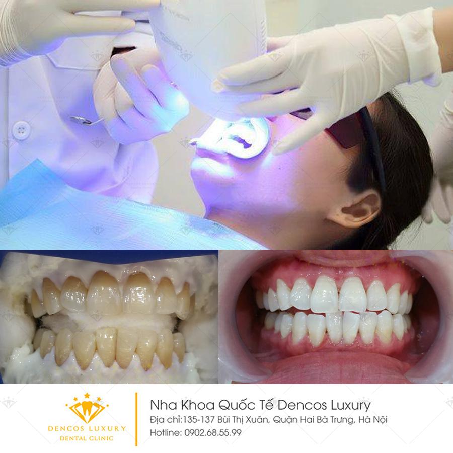 5 cách làm trắng răng hiệu quả tại nhà