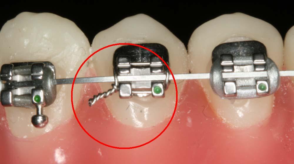 Ưu nhược điểm của niềng răng mắc cài
