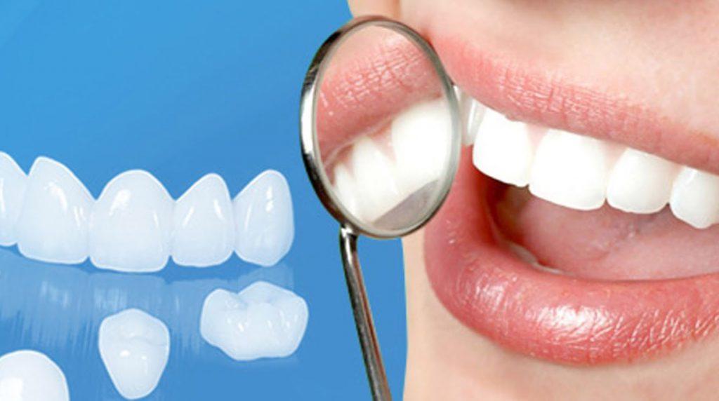 Bọc răng sứ an toàn