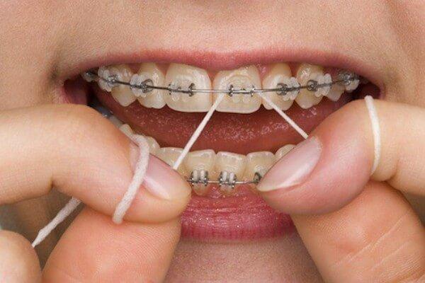Chăm sóc sau khi niềng răng mắc cài
