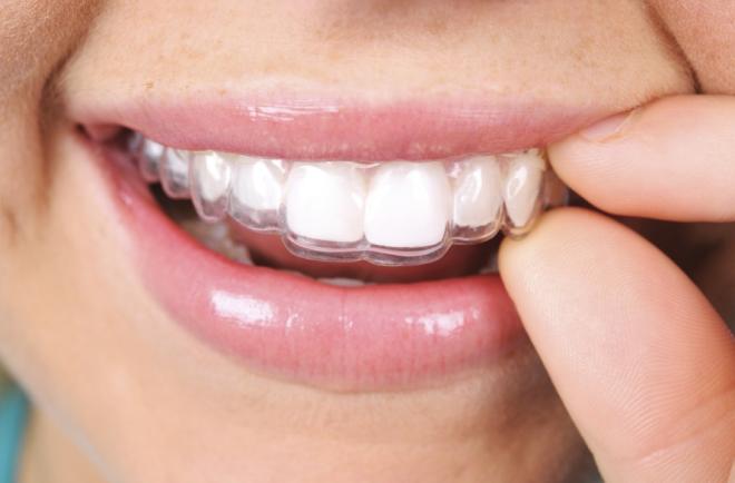 Những lưu ý khi niềng răng không mắc cài