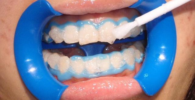 Quy trình tẩy trắng răng bằng đèn zoom