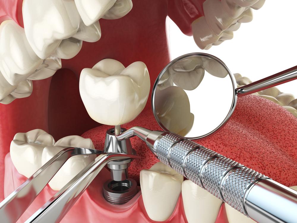 Thời gian trồng răng implant là bao lâu?