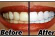 Thực hư việc tẩy trắng răng bằng laser