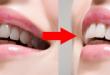 Răng bị ố vàng làm sao để trắng nhanh nhất